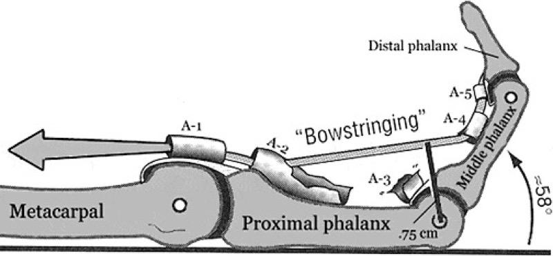 Bowstringing